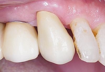 上顎犬歯をジルコニアクラウンで修復2.jpg