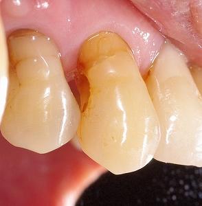 上顎犬歯側面の虫歯.jpg