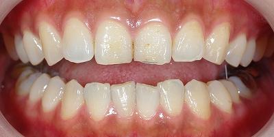 上顎前歯エナメル質磨耗2.jpg