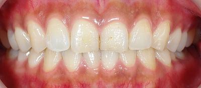 上顎前歯のエナメル質磨耗1.jpg