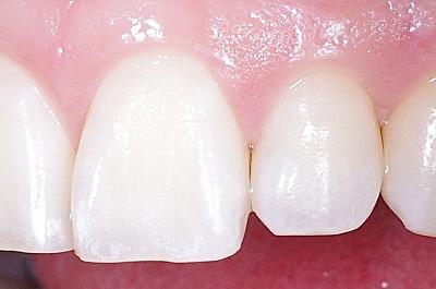 上顎前歯の隣接面カリエス1-.jpg