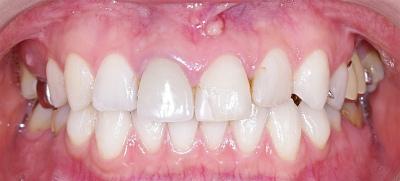 上顎前歯フィステル1.jpg