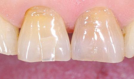 上顎前歯ブロック状に破折1.jpg