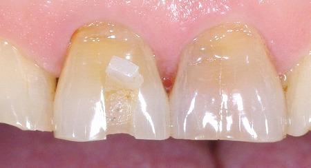 上顎前歯ブロック状に破折2.jpg
