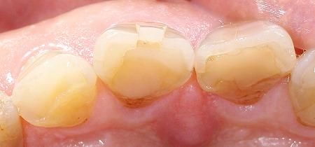 上顎前歯ブロック状に破折3.jpg