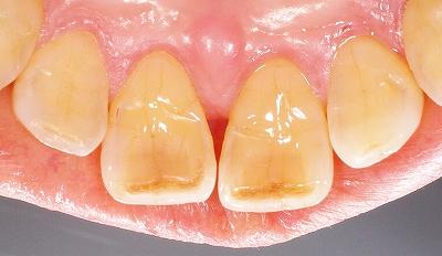 上顎前歯先端の虫歯1.jpg