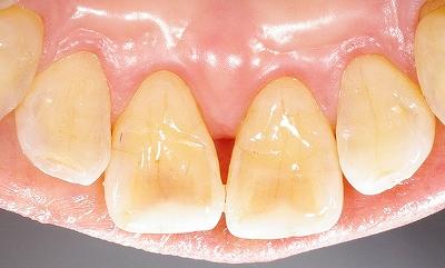 上顎前歯先端の虫歯2.jpg