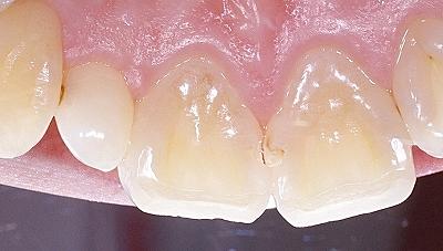 上顎前歯隣接面カリエス2-.jpg