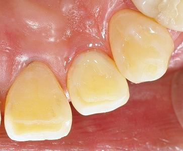 上顎側切歯舌側AFC2-3.jpg