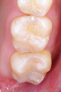 上顎第二大臼歯の虫歯3.jpg
