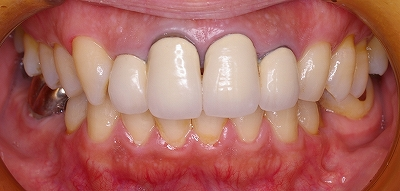 前歯のクラウン脱離3-1.jpg