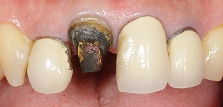 前歯のクラウン脱離3-2.jpg