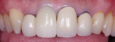 前歯のクラウン脱離3-3.jpg