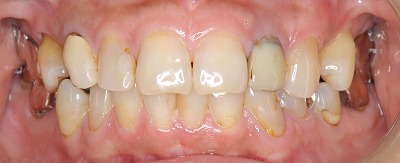 前歯は透明感が大事ー1.jpg