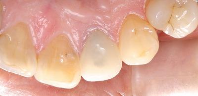 前歯は透明感が大事ー4.jpg
