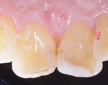 前歯先端磨耗虫歯3.jpg