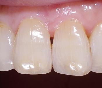 前歯先端磨耗虫歯4.jpg