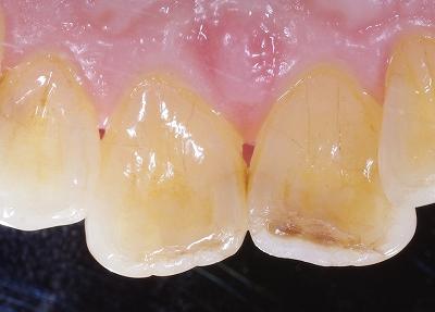 前歯虫歯先端虫歯2.jpg