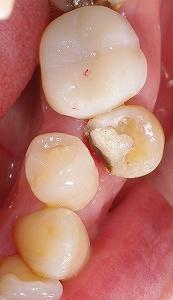 第二小臼歯頬側転移2.jpg