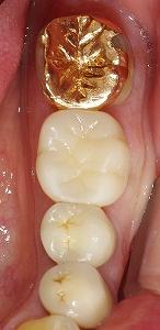 茶色の虫歯をセラミッククラウンに2.jpg