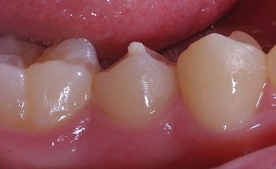 中心結節、下顎第二小臼歯2.jpg