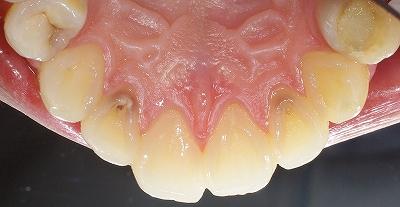 虫歯になり易い部位 その2-1.jpg