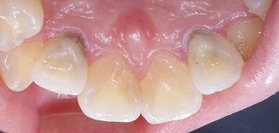 虫歯になり易い部位その3ー3.jpg