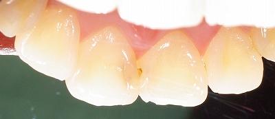 虫歯になり易い部位その4ー2.jpg