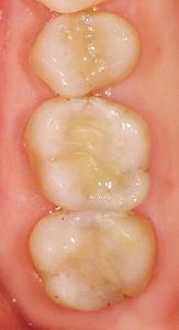 虫歯の奥に破折線3.jpg