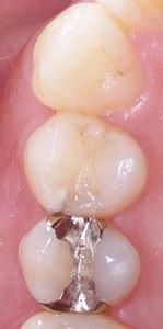 虫歯を放置したために進行した症例1.jpg