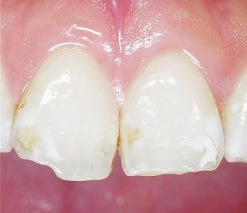 転んで前歯を強打2.jpg