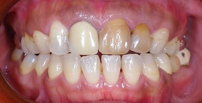 変色歯はセラミッククラウンで1.jpg