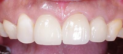 変色歯はセラミッククラウンで2.jpg