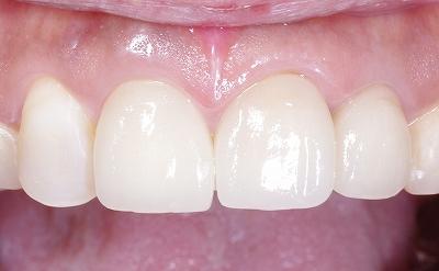 変色歯はセラミッククラウンで3.jpg
