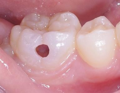 萌出直後大きな虫歯1.jpg