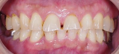 咬み合わせが原因で前歯が磨耗1.jpg