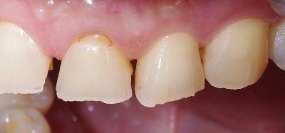 咬み合わせが原因で前歯が磨耗2.jpg