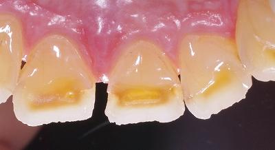 咬み合わせが原因で前歯が磨耗3.jpg
