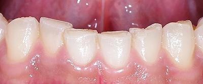 咬み合わせによる前歯の磨耗2-下.jpg