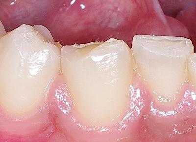 咬み合わせによる前歯の磨耗2-下ー拡大.jpg