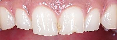 咬み合わせによる前歯の磨耗2-上.jpg