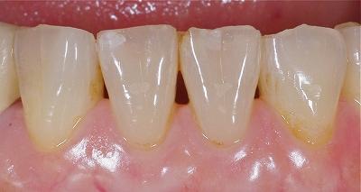 咬み合わせによる前歯の磨耗6-2.jpg