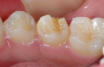 エナメル質形成不全第2小臼歯舌側.jpg