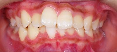 左上側切歯の叢生1.jpg