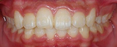 左上側切歯の叢生3.jpg