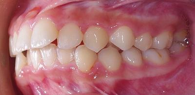 歯列拡大咬合是正2.jpg