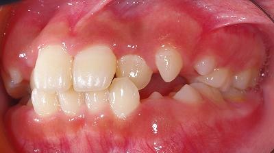 歯列弓拡大側面.jpg