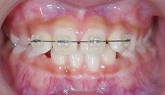 上の前歯のレべリング.jpg
