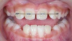 上の前歯のレべリングー2.jpg