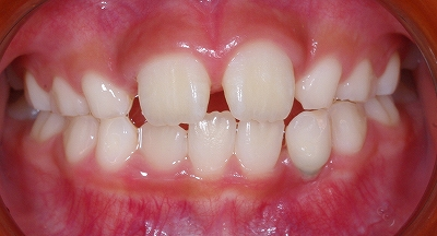 上下側切歯スペース不足正面.jpg